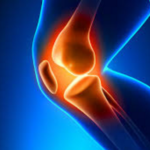 Home Remedies for Knee Joint Pain 2