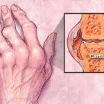 Simple Herbal treatment of arthritis, Herbal Tips