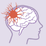 Glutamic acid is Important in Epilepsy Therapy