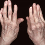 What is Arthritis, How to Prevent be avoided