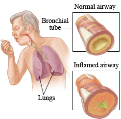 Symptoms of asthma attack in adults