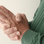 Exercise, Rest, Relaxation, Proper food, Vitamin and Minerals are good therapy for Arthritis