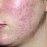 """Herbal home treatment for acne problem and its main causes-""""SkinCare"""""""
